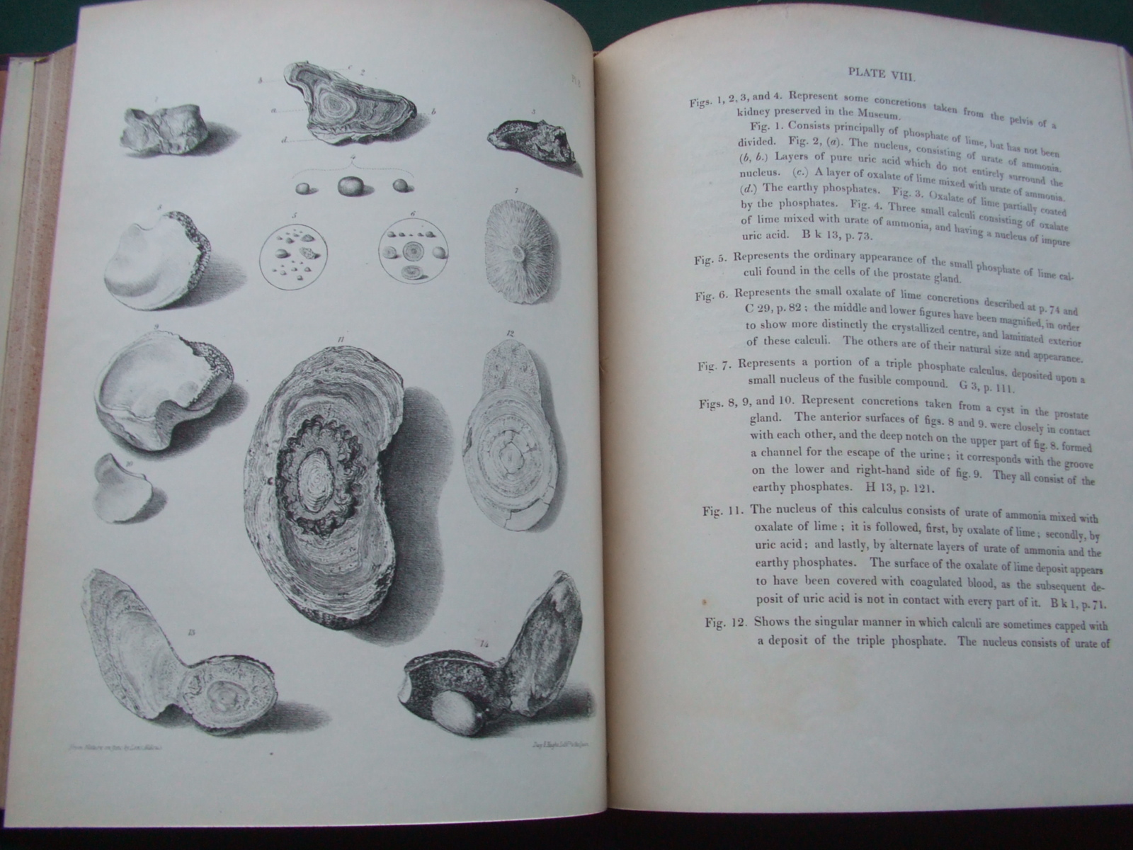 Image for A descriptive and illustrated catalogue of the calculi and other animal concretions contained in the museum of the Royal college of surgeons in London